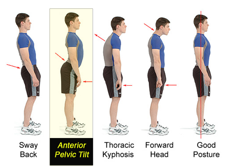 what is anterior pelvic tilt posture problem and back pain